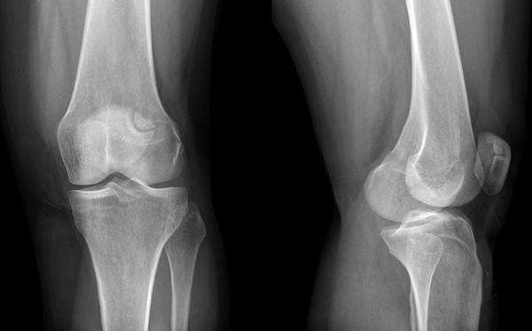 a vállízület blokádja artrózissal