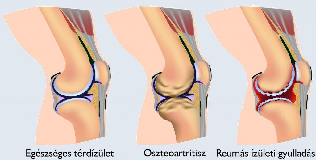 hogyan kell kezelni a vállízület artrózisát a térd izomgyógyulása