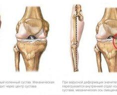 futó fájdalom után a csípőízületben gyógyszer váll artrózis