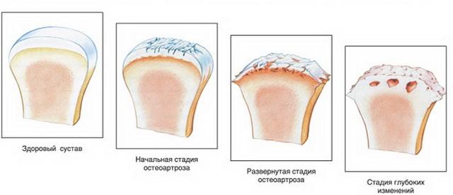 A deformáló arthrosis okai, tünetei és kezelése - Osteoarthritis