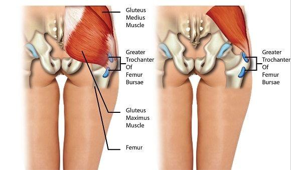 csípőbursitis kezelés a szegycsont ízületeinek gyulladása
