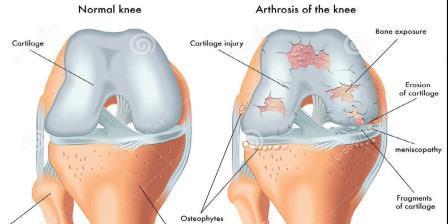 a térdízület 3. fokú posztraumás artrózisa