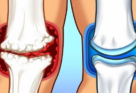 terápiás gyakorlatok ízületi fájdalmak kezelésére