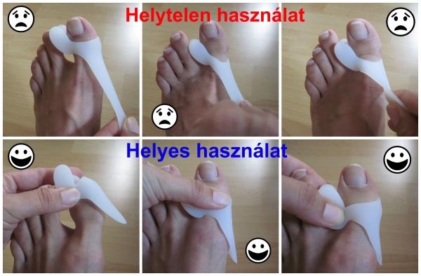 hogyan lehet kezelni a láb deformált artrózisát