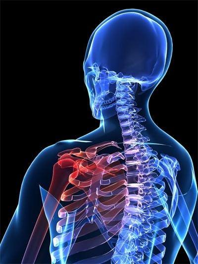 A legfontosabb dolog a boka ízülete, a tünetek és az okok arthrosisának kezelésében - Sérülések