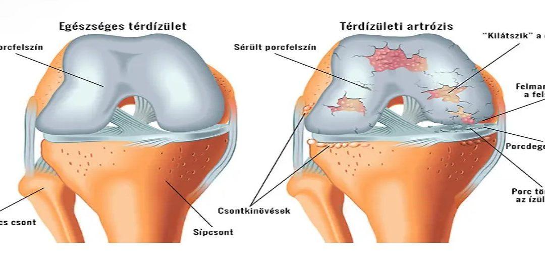 a térd kezelési rendjének artrózisa)