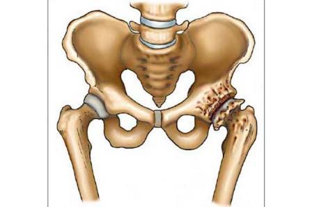 csípőízület a csípőízület kezelésében)