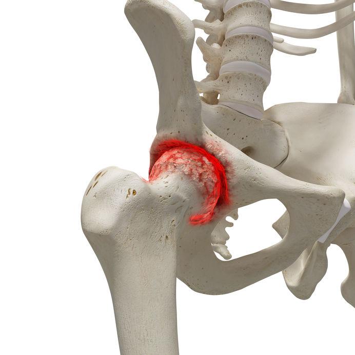 a csípőízület fájdalmát jelenti
