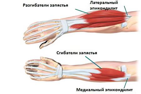 artrózis, amely deformálja a könyökízületet 1 fokos kezelés)