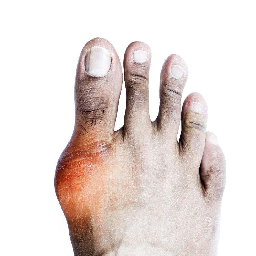 folyadék az ujj ízületében sérülés után
