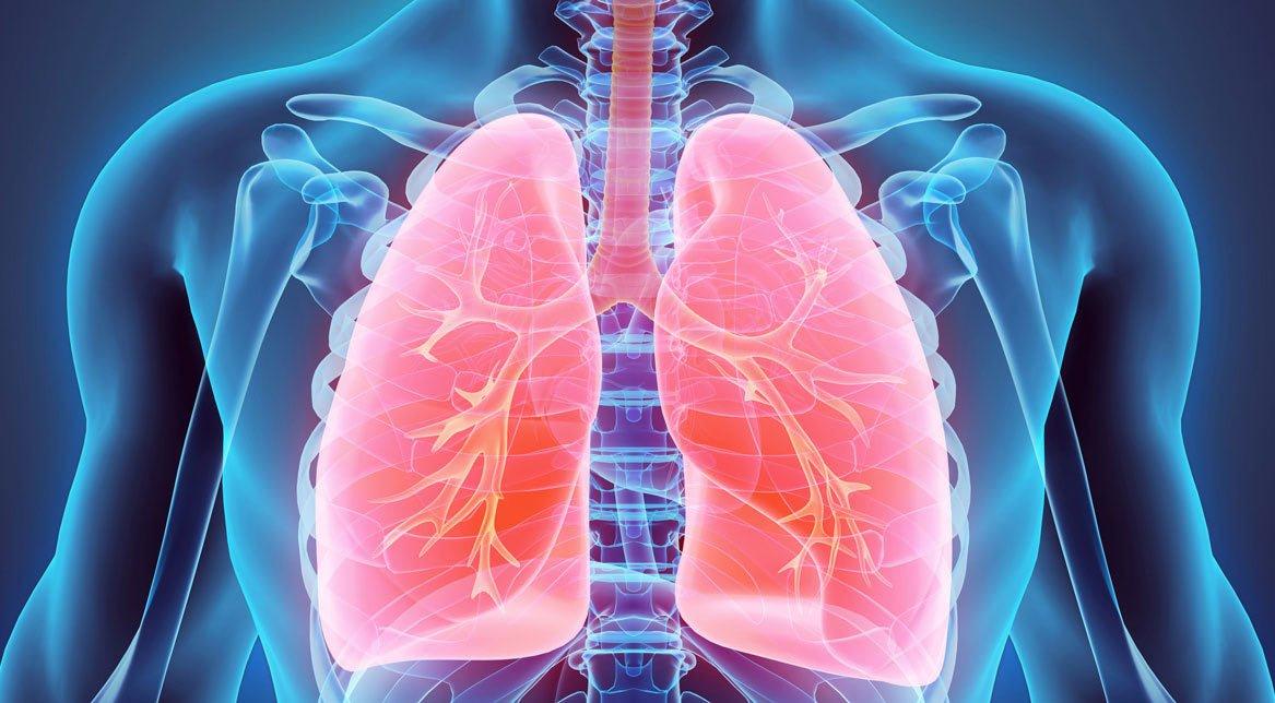 ízületi fájdalom tüdőrákban