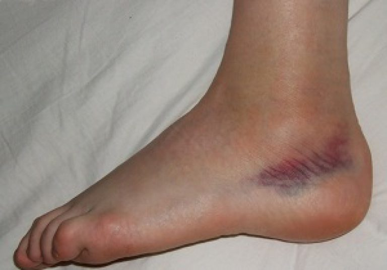 a bokaízület 1. fokozatának artrózisa