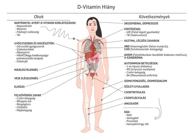 a d-vitamin hiánya és ízületi fájdalmak csípőcsontritkulás, mint a kezelés