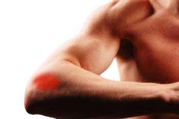 a könyökízület fáj a meghosszabbítás során