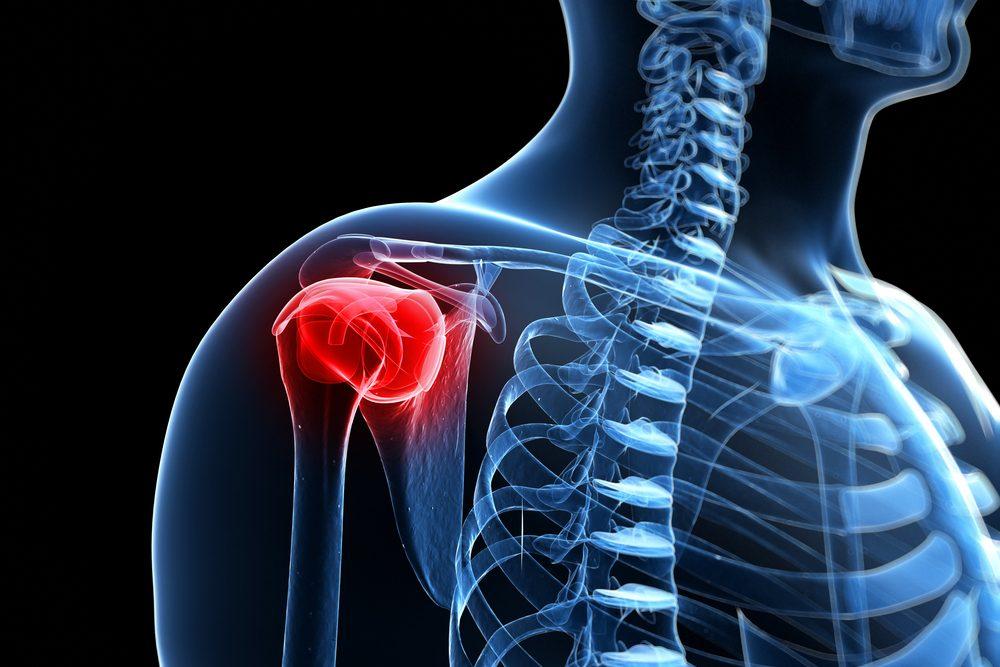 Ha fáj a nyak | TermészetGyógyász Magazin