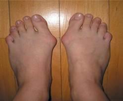 lábujjak artritisz tabletták)