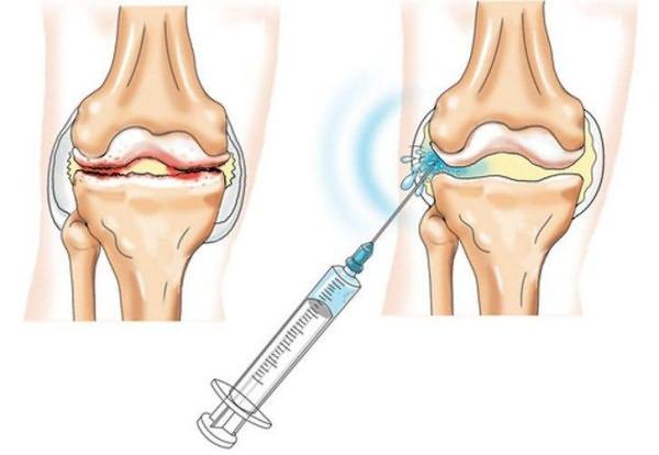 agyag az artrózis kezelésében)