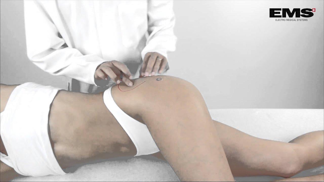 fájó fájdalom a csípőízületben, mit kell tenni
