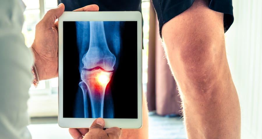 a karok és a lábak ízületei gyakran fájnak amelyből megjelenik a vállízület artrózisa