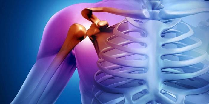 hogyan lehet kiküszöbölni az ízületek izomfájdalmait