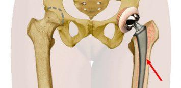 csípőízület ízületi tünetei