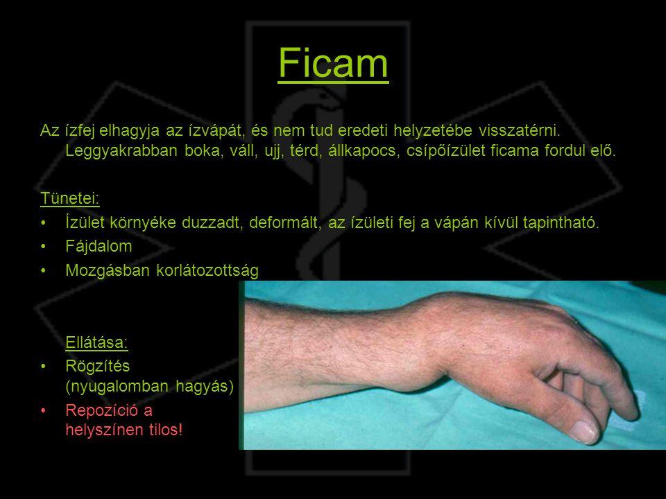 csípőízület osteochondrozisának jelei)
