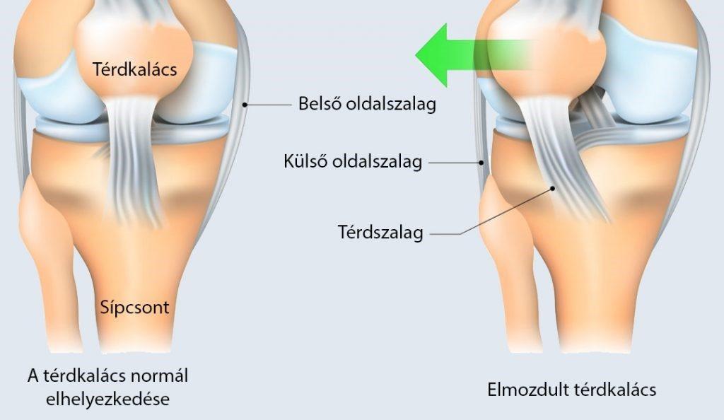 akut húzási fájdalom a térdízületben)