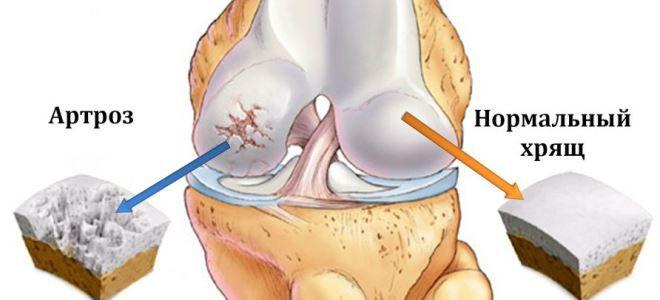gyulladáscsökkentő kenőcsök térdízület artrózisához