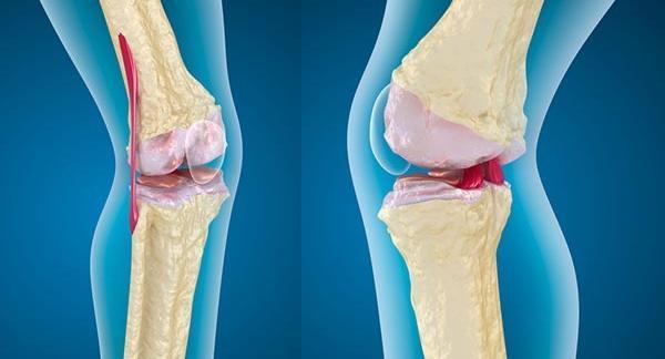 a térd artrózisa enyhíti a fájdalmat ízületek és gerinc degeneratív-disztrofikus betegségei