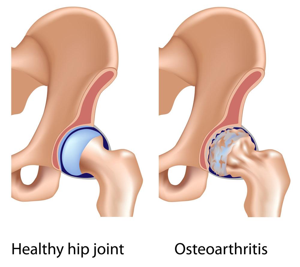 csípőízület osteochondrozisának jelei