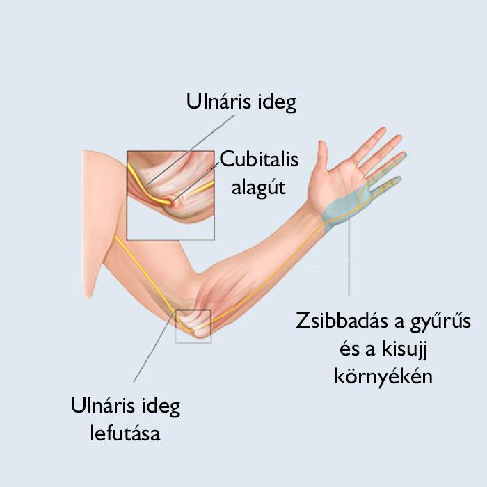 a kéz ujjainak zsibbadása és fájdalma van