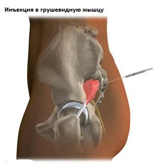 boka ligamentumok helyreállítása)