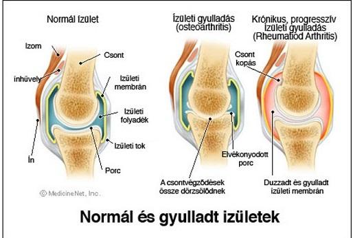 térd izületi gyulladása rétek közös kezelése