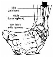 könyökcsigolya-sprain kezelés)