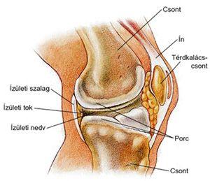 a térd artrózisa enyhíti a fájdalmat