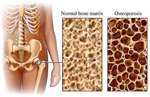 ízületi csontritkulás hogyan kezelhető)