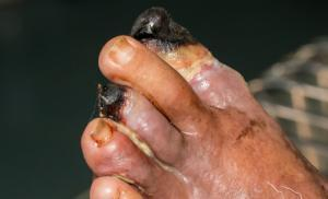láb artrózis cukorbetegség kezelése)