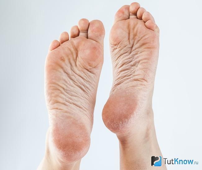 artritisz kúpok a lábujjakon