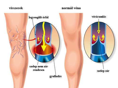 kötőszöveti gyulladás tünetei