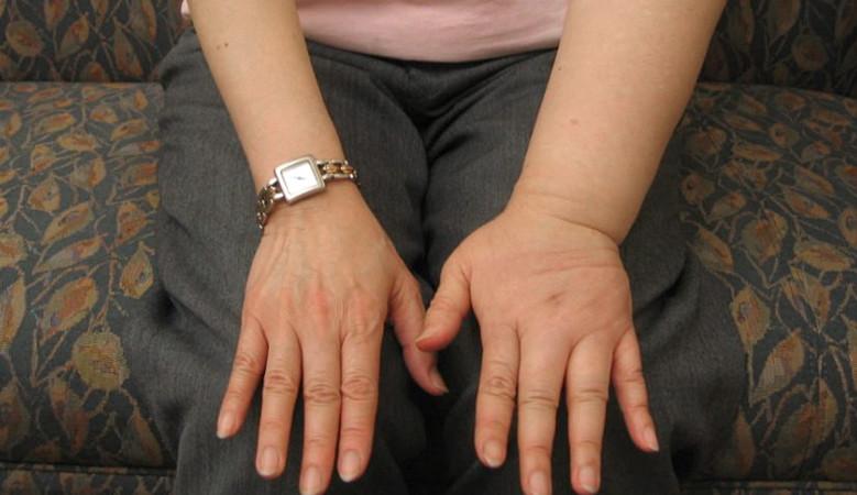 ízületi osteoarthritis kenőcs készülékek lézeres kezelés artrózis