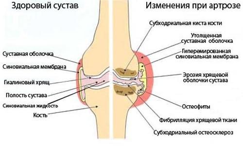 hogyan készítsünk kompressziót az ízület fájdalmára)