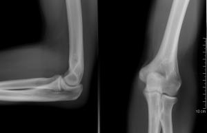 a nagy lábujj ízületének akut artritisz