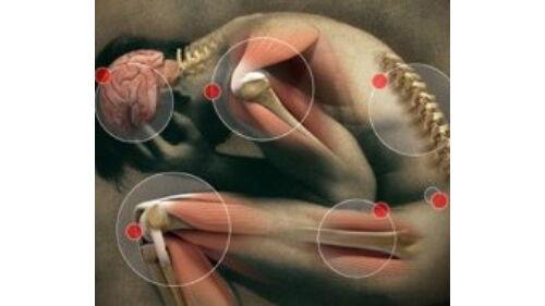 Ízületi fájdalom: a légkondi az oka?