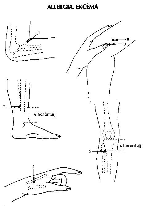 a kar középső ujjának ízületének gyulladása)