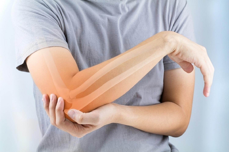 Rheumatoid Arthritis | Deldunantulifurdok