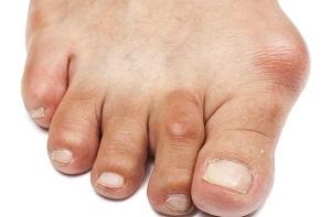 a lábujjak és az ízületek fájnak)
