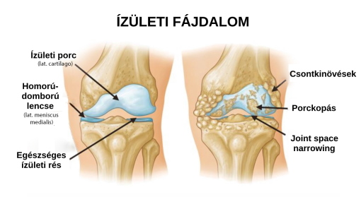 a karok és a lábak ízületei gyakran fájnak)