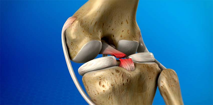 térd sérülések fájdalma kenőcsök az emlő osteochondrozisáról