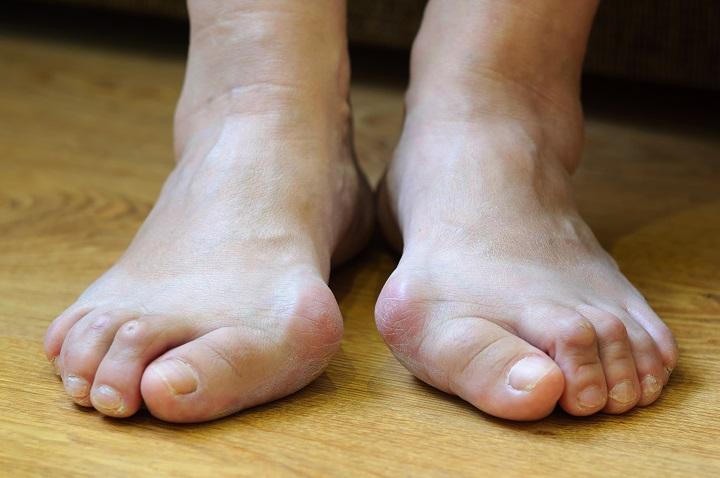 fájdalom a 4 ujj lábánál