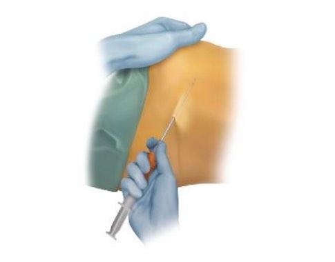 gyógyítható a vállízület térd sérülések fájdalma